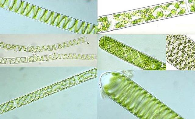 Спирогира - зеленые водоросли