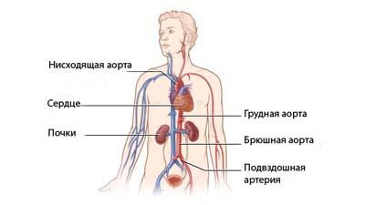 Разница между аортой и артерией