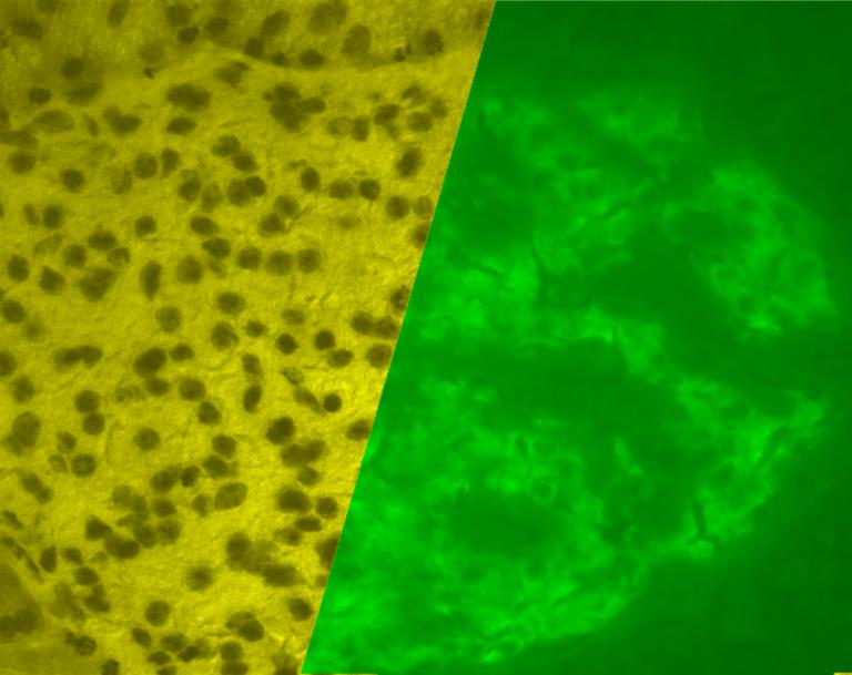 Бета-клетки