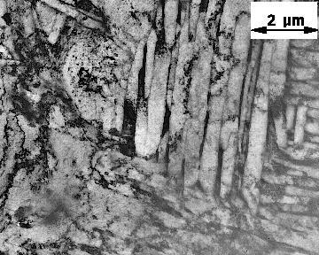 Бейнитная структура стали