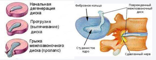 Позвонки с дисками в разрезе