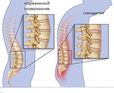 Болезнь Бехтерева (Анкилозирующий спондилит)