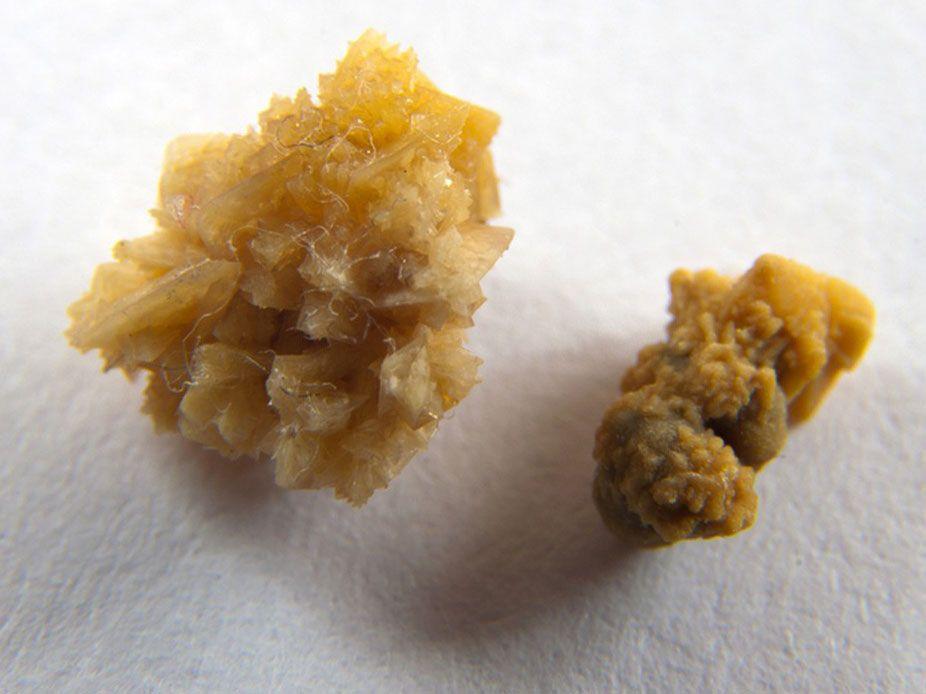 Оксалат кальция - камни в почках