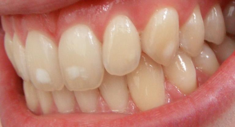 При избытке фтора в воде появляется Флюороз на эмали зубов