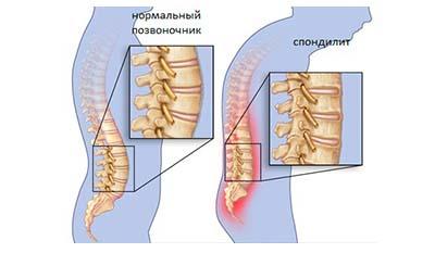 Разница между Болезнью Бехтерева и Дегенеративным заболеванием диска