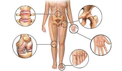 Разница между симптомами Артрита и Ревматоидного артрита