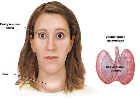 Симптомы Базедовой болезни