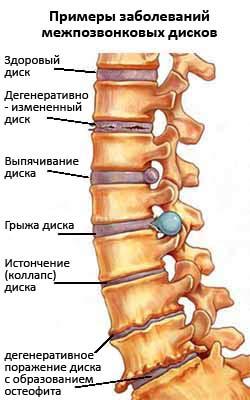 Заболевания межпозвонковых дисков (остеохондроз)