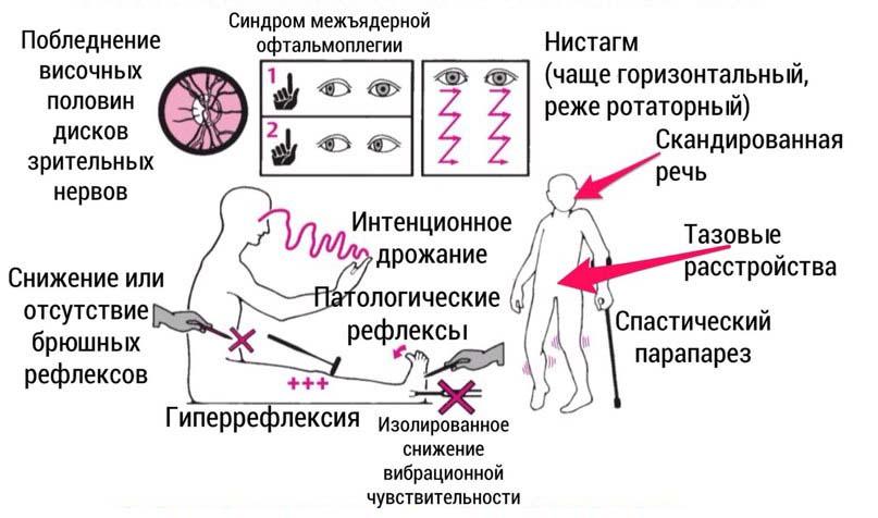 Основные признаки Рассеянного Склероза