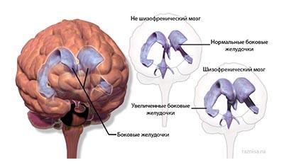 Разница между Шизофренией и Болезнью Альцгеймера