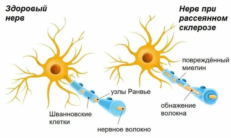Здоровый Нерв и при Рассеянном Склерозе