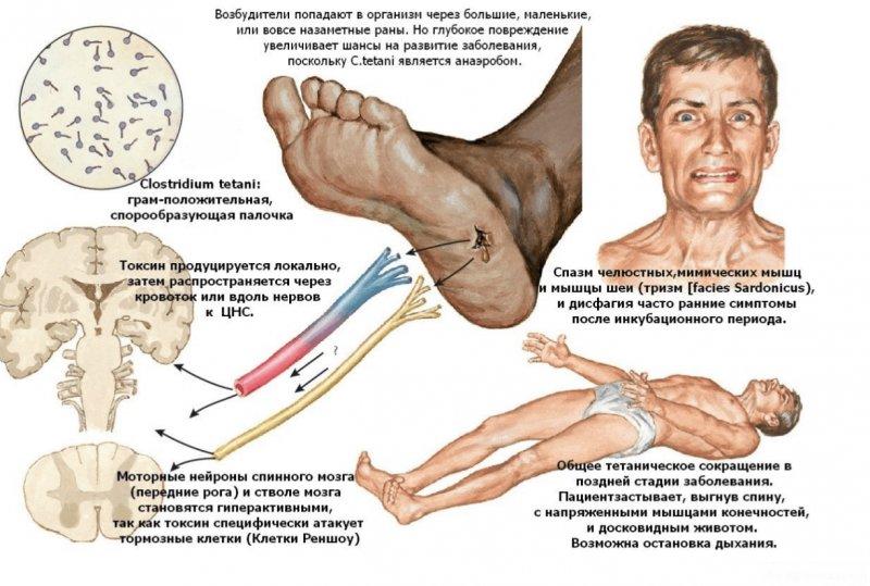 Столбняк - Клинические особенности