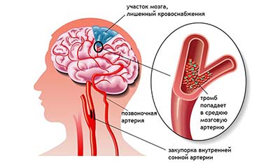 Разница между Кровоизлиянием в мозг и Инсультом