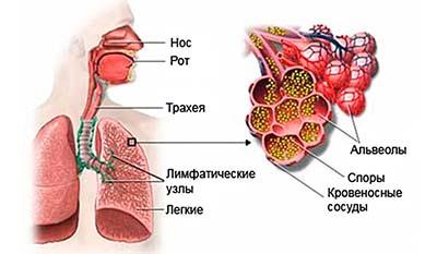 Разница между Аспергиллезом и Афлатоксикозом