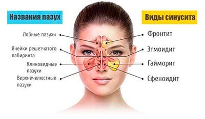 Разница между Синусовой инфекцией и инфекцией Верхних дыхательных путей