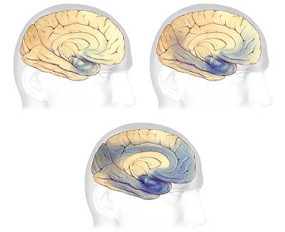 Бляшки и спутанные клубки при болезни Альцгеймера