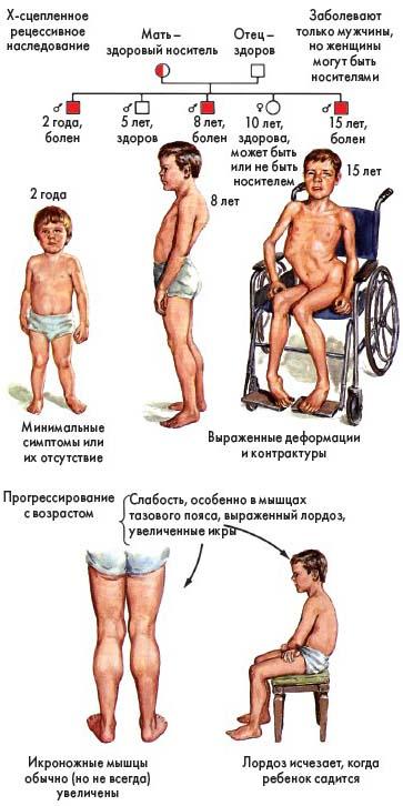 Мышечная дистрофия Дюшенна