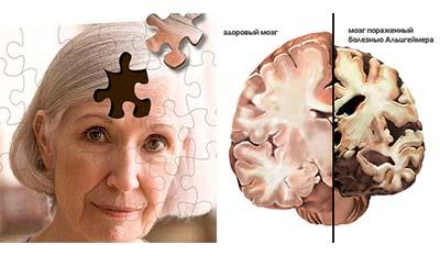 Разница между болезнью Хантингтона и болезнью Альцгеймера