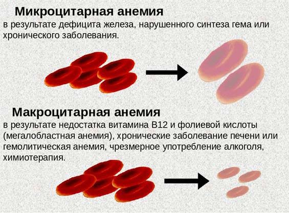 Разница между микроцитарной и макроцитарной анемией