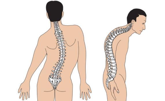 Разница между мышечной дистрофией Дюшенна и Беккера