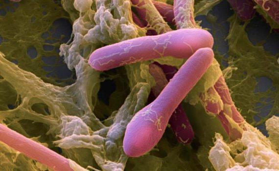 Экзотоксины продуцирует бактирия ботулина (Clostridium botulinum)