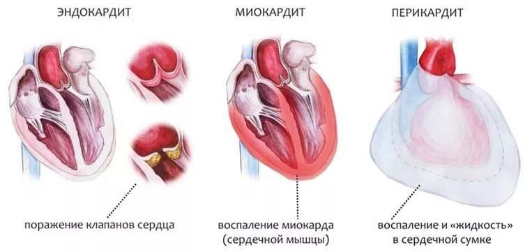 Миокардит, Перикардит и Эндокардит