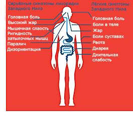 Симптомы Лихорадки Западного Нила
