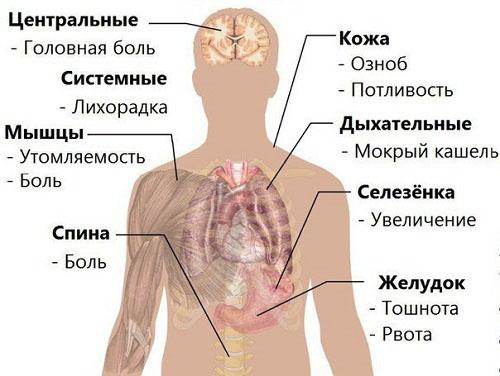 Симптомы-Малярии