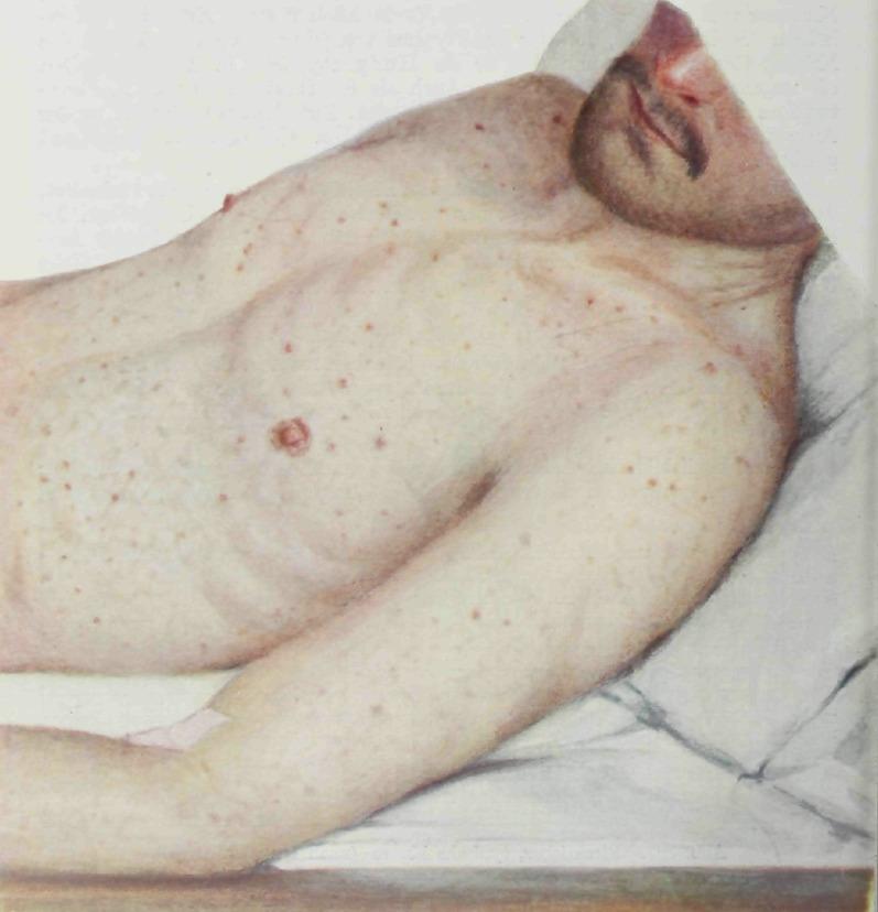 Сыпь на коже при эпидемическом сыпном тифе