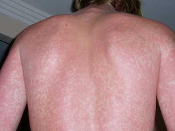 Сыпь на спине при лихорадке Денге