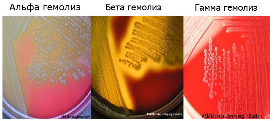 Типы Гемолиза на кровяном агаре