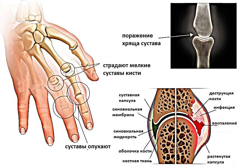 Паталогия Ревматоидного артрита