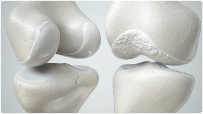 Здоровый и больной остеоартрозом сустав