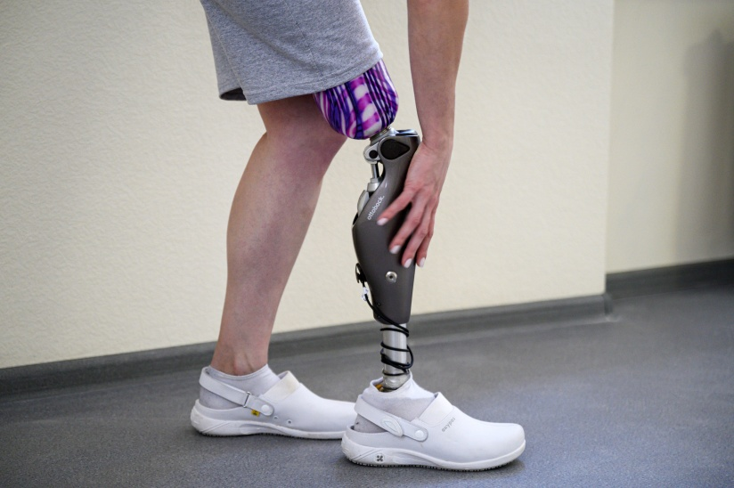 Бионический протез ноги - это сложное, технологичное устройство