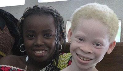 Разница между Альбинизмом Меланизмом и Лейкизмом