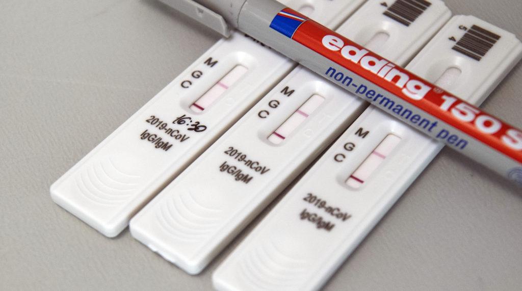 Серологический тест на антитела к коронавирусу SARS-CoV-2