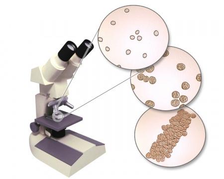 С помощью микроскопа исследуются твердые части мочи: на снимке показаны эритроциты (вверху), белые кровяные тельца (в центре) и слепок собранных вместе белых кровяных телец (внизу)